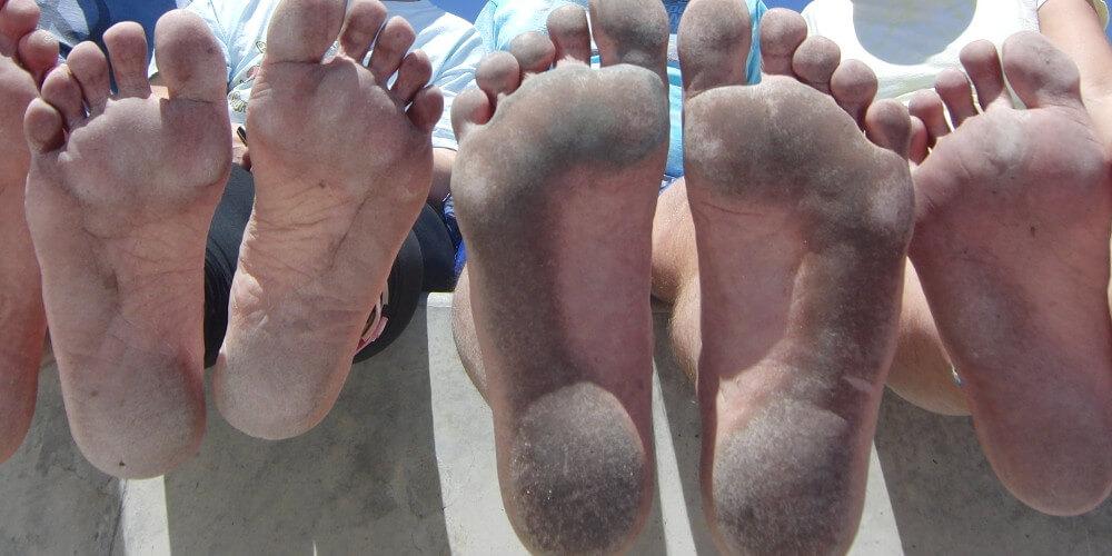 Czarne stopy